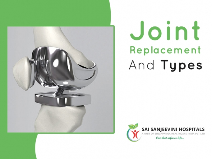 Types of Joint Replacement