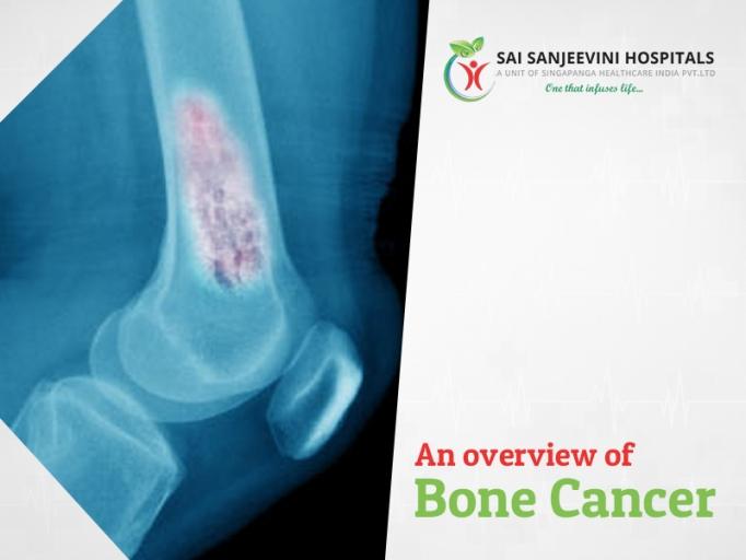 Bone Cancer – An Overview