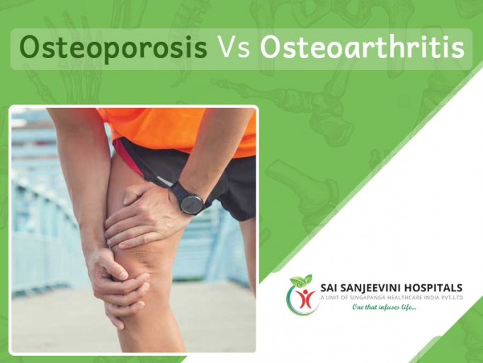 Difference Between Osteoarthritis And Osteoporosis