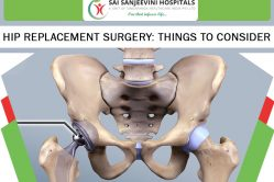 Hip Replacement Surgery Things to